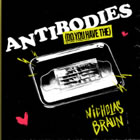 Antibodies (Do You Have The)